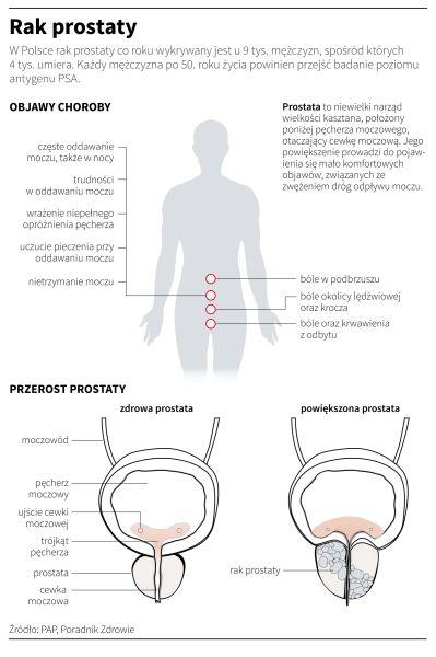 Rak prostaty (Maria Samczuk/PAP)